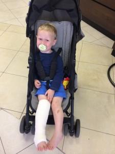 Oliver broken leg